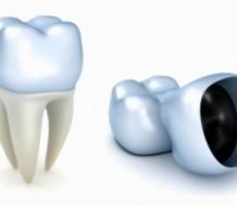Que-hacer-cuando-una-corona-dental-se-cae