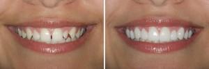 Antes y después de las carillas dentales Lumineers. Clinica dental CCEO Alicante. Foto: DenMat